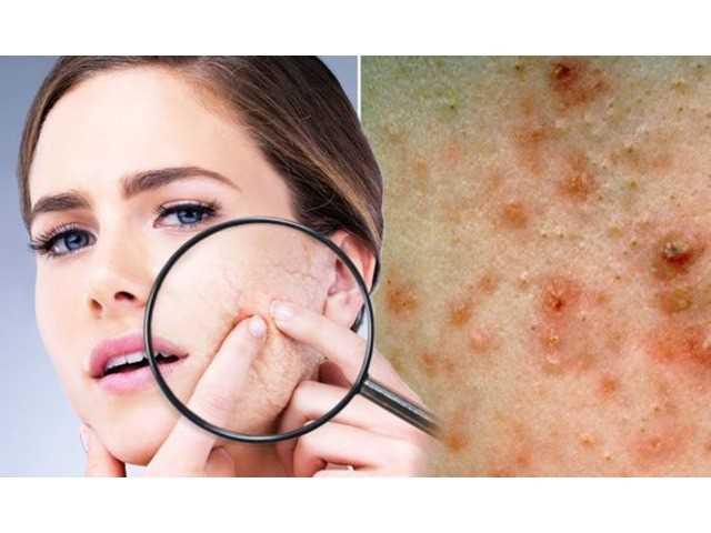 Acne Scars – Treatments To Beautiful, Vibrant Skin