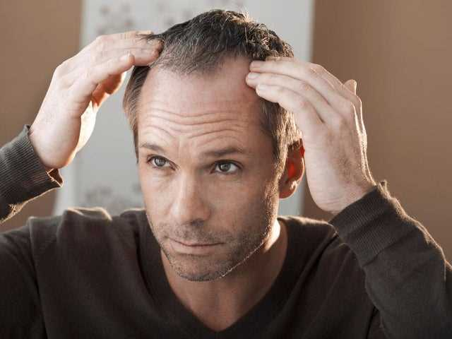 Psychological Effects Of Hair Loss